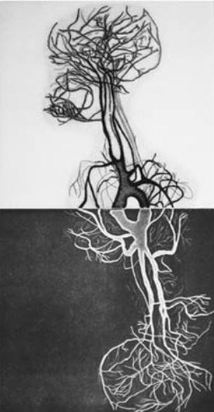 Rhizome de Muriel Baumgartner
